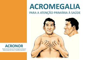 Resultado de imagem para Acromegalia