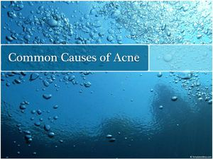 Common Causes of Acne