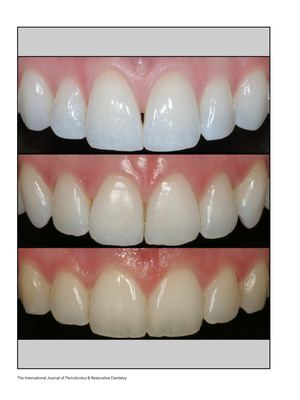 Calamo Analysis Of The Shapes Of Maxillary Central Incisors In A