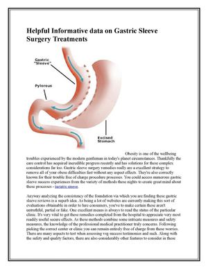 Helpful Informative data on Gastric Sleeve Surgery Treatments