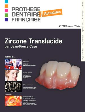 a02588077888b4 Calaméo - Prothèse Dentaire Française Actualités N°1 2014