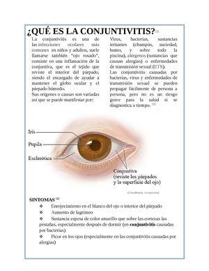 es la infección viral del ojo rosado