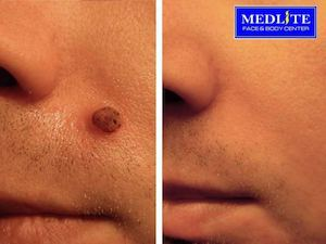 Mole Excision For Only Php1347 At Dealspot Till March 31 2016 77665