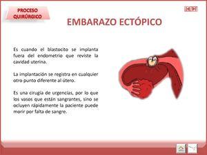 ligadura de trompas y embarazo ectopico