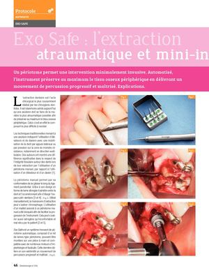 Exo Safe® l'extraction atraumatique et mini-invasive - Dr JB Verdino & D Mardenalom - Dentoscope n°154 - novembre 2015