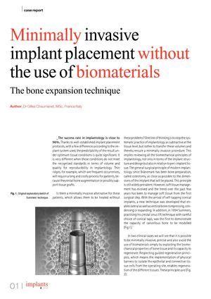 Minimally invasive implant placement without the use of biomaterials.The bone expansion technique-Dr CHAUMANET-Implants-Dec 2015