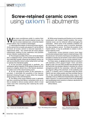 Screw-retained ceramic crown using axiom Ti abutments-Dr Renner- Dental Asia